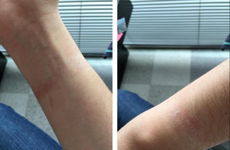 У пользователей появилось аллергия и раздражение от ношения Apple Watch